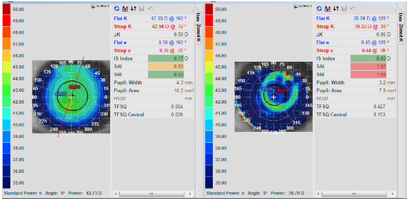 Baseline and over topography maps of left eye