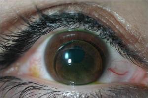 Corneal GP Lens