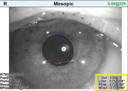 Image 2. Angle Kappa measurements taken with the Marco/Nidek OPD-Scan III