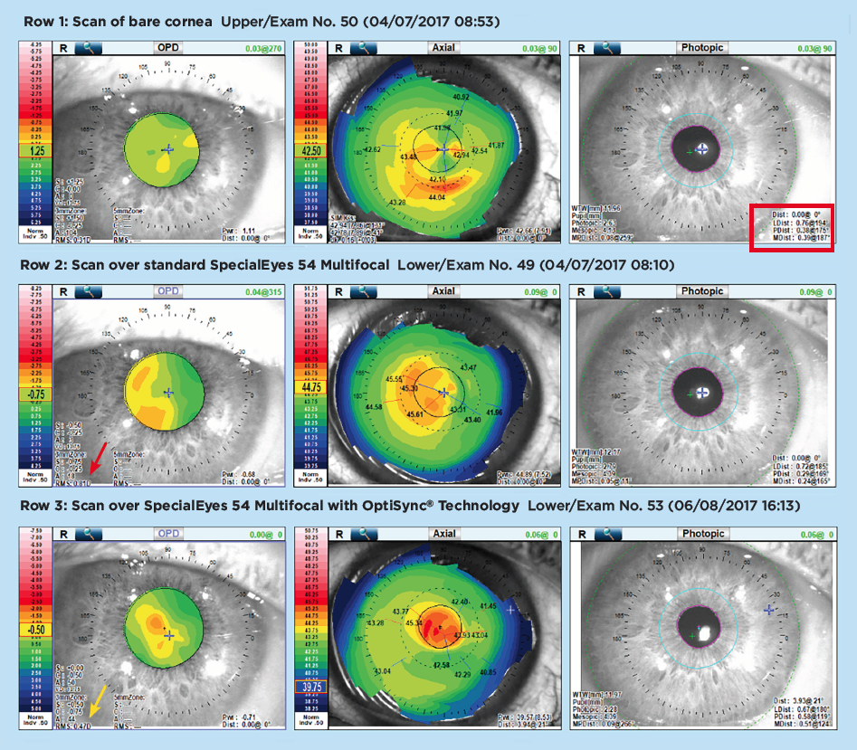Row 1: Scan of bare cornea Upper/Exam No. 50 (04/07/2017 08:53) . Row 2: Scan over standard SpecialEyes 54 Multifocal Lower/Exam No. 49 (04/07/2017 08:10) . Row 3: Scan over SpecialEyes 54 Multifocal with OptiSync Technology Lower/Exam No. 53 (06/08/2017 16:13)