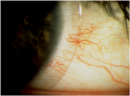 Tight Lens Affecting Conjunctiva