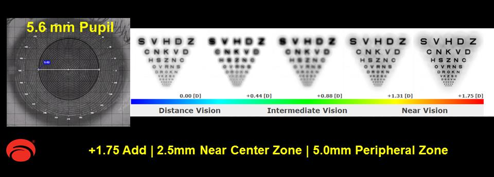 Redesign the 54 Multifocal optics for the patient with the 5.6mm pupil. Based on a 5.6mm pupil and +1.75 add power, the 54 Multifocal design will now have a 2.5mm near-center zone and 5.0mm peripheral zone. Example F demonstrates a better balance of vision at all distances and better contrast when compared to the original simulation for the 5.6mm pupil using the standard multifocal design.