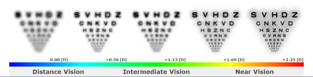 The far-left image represents distance vision, the far-right image represents near vision, and the images in between represent intermediate vision.the far-left image of Simulation #1, distance vision is blurred and degraded. The patient's distance visual acuity (DVA) with this toric multifocal contact lens design was 20/50 OU.