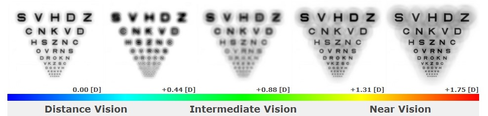 The simulated images show that near and intermediate vision is degraded with this multifocal design, especially in Simulation #2, which illustrates vision in a low-light setting (dilated pupil of 6.0mm). The patient's visual acuities at the follow-up visit were 20/30 at distance and J4 at near, with complaints of poor vision in low-light settings and difficulty with computer and near work.
