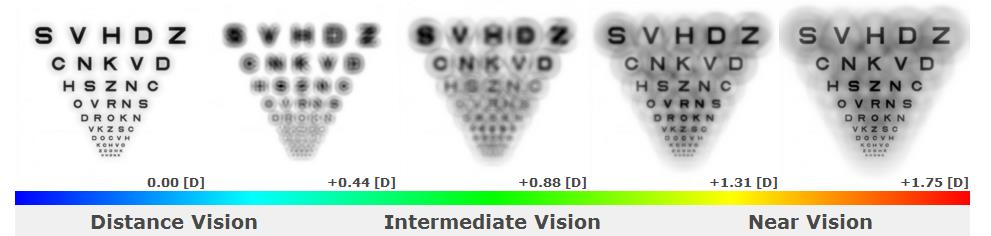 he simulated images show that near and intermediate vision is degraded with this multifocal design, especially in Simulation #2, which illustrates vision in a low-light setting (dilated pupil of 6.0mm). The patient's visual acuities at the follow-up visit were 20/30 at distance and J4 at near, with complaints of poor vision in low-light settings and difficulty with computer and near work.