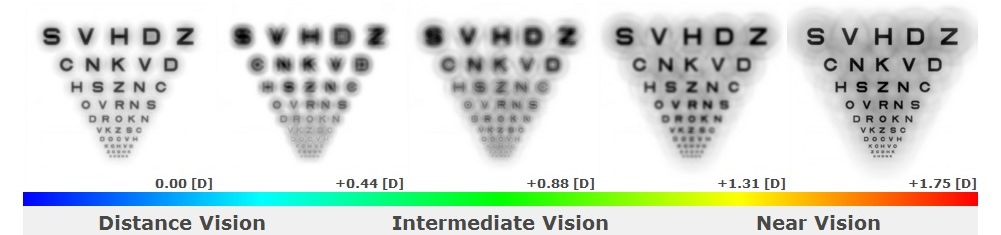 The improvement illustrated in Simulations #3 and #4 corresponded directly to the patient's improved visual acuities with the second set of trial multifocal toric contact lenses, which were designed using the Multifocal Simulator. Distance visual acuity improved from 20/30 to 20/20- and near visual acuity from J4 to J1 at the final follow-up visit.
