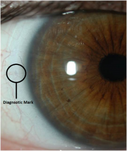 SpecialEyes Custom Toric Contact Lenses -on eye diagnostic marking